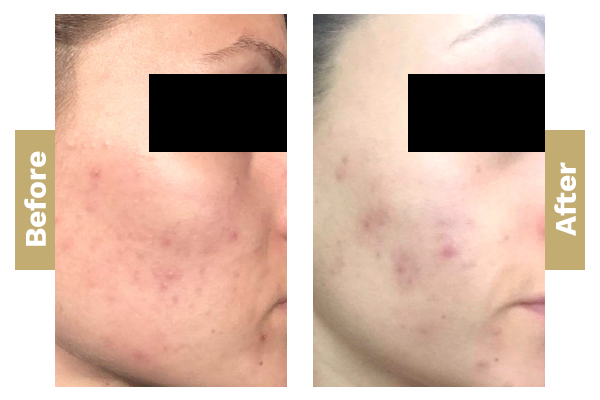 Acne-pigmentation-1