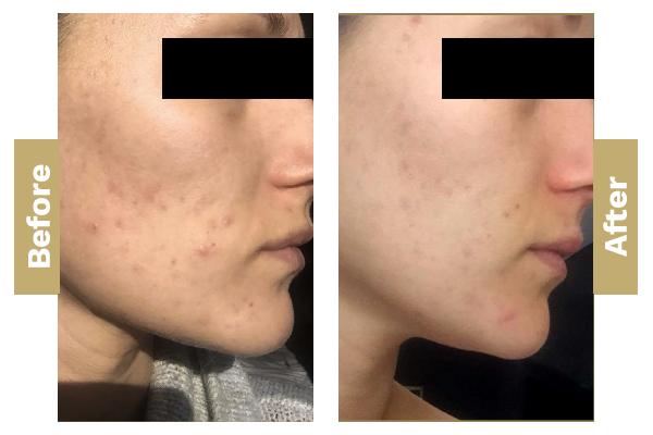 Acne-pigmentation-2