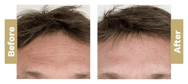 forehead-filler