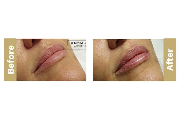 lips-10