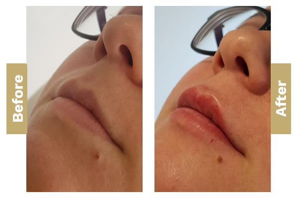 lips-5