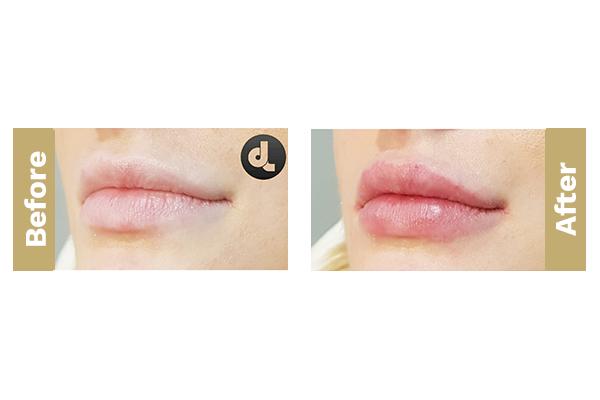 lips-6