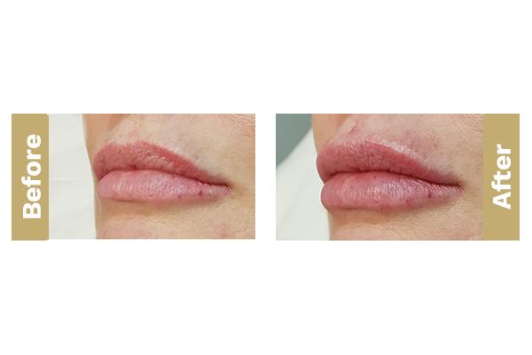 lips-9