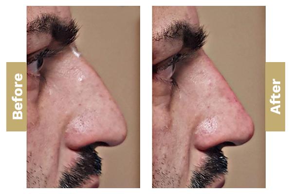 non-surgical-nose-job-02
